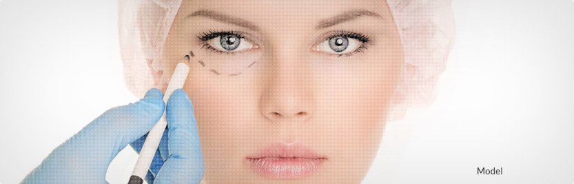marking lines for eyelid surgery
